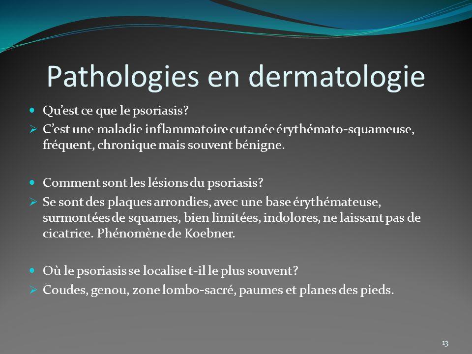 Pathologies en dermatologie Quest ce que le psoriasis? Cest une maladie inflammatoire cutanée érythémato-squameuse, fréquent, chronique mais souvent b