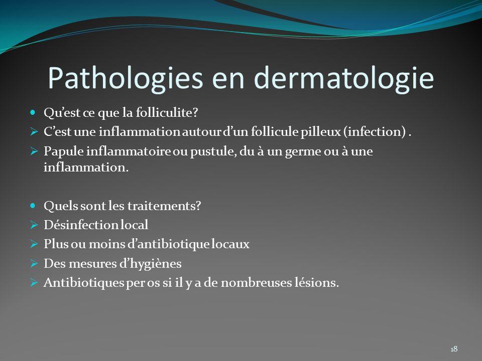 Pathologies en dermatologie Quest ce que la folliculite? Cest une inflammation autour dun follicule pilleux (infection). Papule inflammatoire ou pustu
