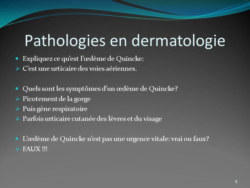 Pathologies en dermatologie Expliquez ce quest lœdème de Quincke: Cest une urticaire des voies aériennes. Quels sont les symptômes dun œdème de Quinck