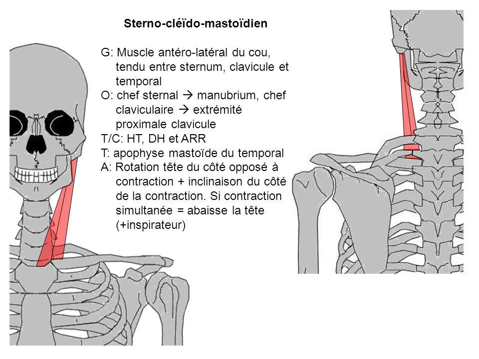 Sterno-cléïdo-mastoïdien G: Muscle antéro-latéral du cou, tendu entre sternum, clavicule et temporal O: chef sternal manubrium, chef claviculaire extr