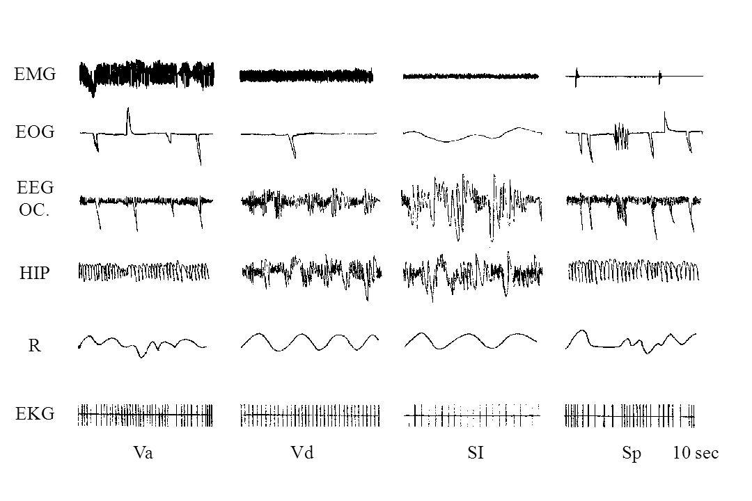 EMG EOG EEG OC. HIP R EKG VaVdSISp10 sec