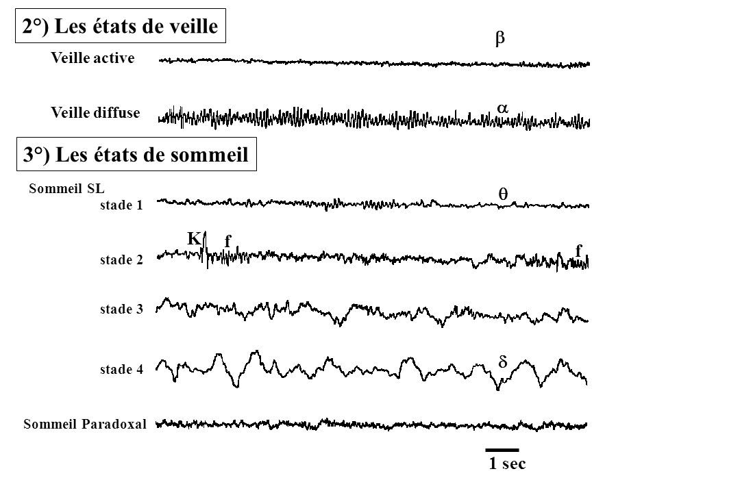 Veille active Veille diffuse Sommeil SL stade 1 stade 2 stade 3 stade 4 Sommeil Paradoxal K f f 1 sec 2°) Les états de veille 3°) Les états de sommeil