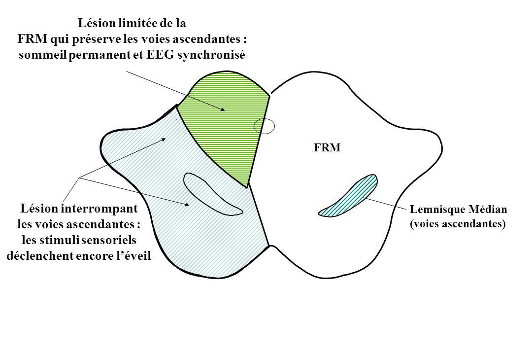 FRM Lésion limitée de la FRM qui préserve les voies ascendantes : sommeil permanent et EEG synchronisé Lésion interrompant les voies ascendantes : les