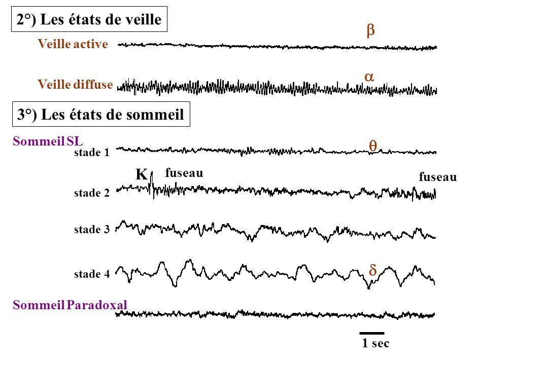 Complexité par rapport à lanimal 4 stades de SL Sommeil Paradoxal = phase onirique –EEG rapide –Atonie musculaire –Activité hippocampique thêta –Mouvements oculaires rapides –Pointes Ponto-Géniculo-occipitale (PGO) 5°) Aspects phénoménologiques chez lhumain