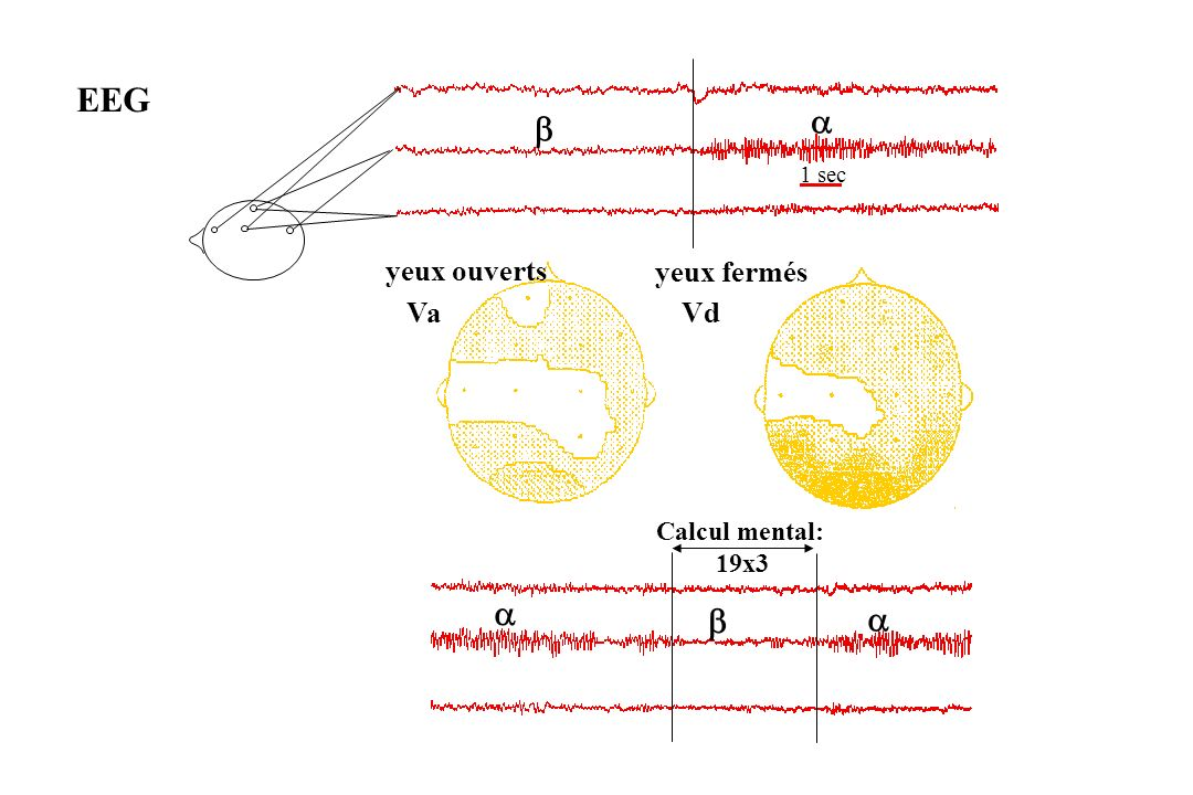 Activité électrique Bande de fréquence État de vigilance Delta 1-4 Hz Sommeil à ondes lentes en pathologie : tumeur cérébrale, dégénérescence.