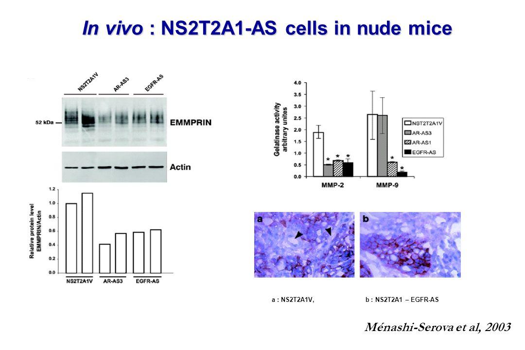 In vivo : NS2T2A1-AS cells in nude mice a : NS2T2A1V, b : NS2T2A1 – EGFR-AS Ménashi-Serova et al, 2003