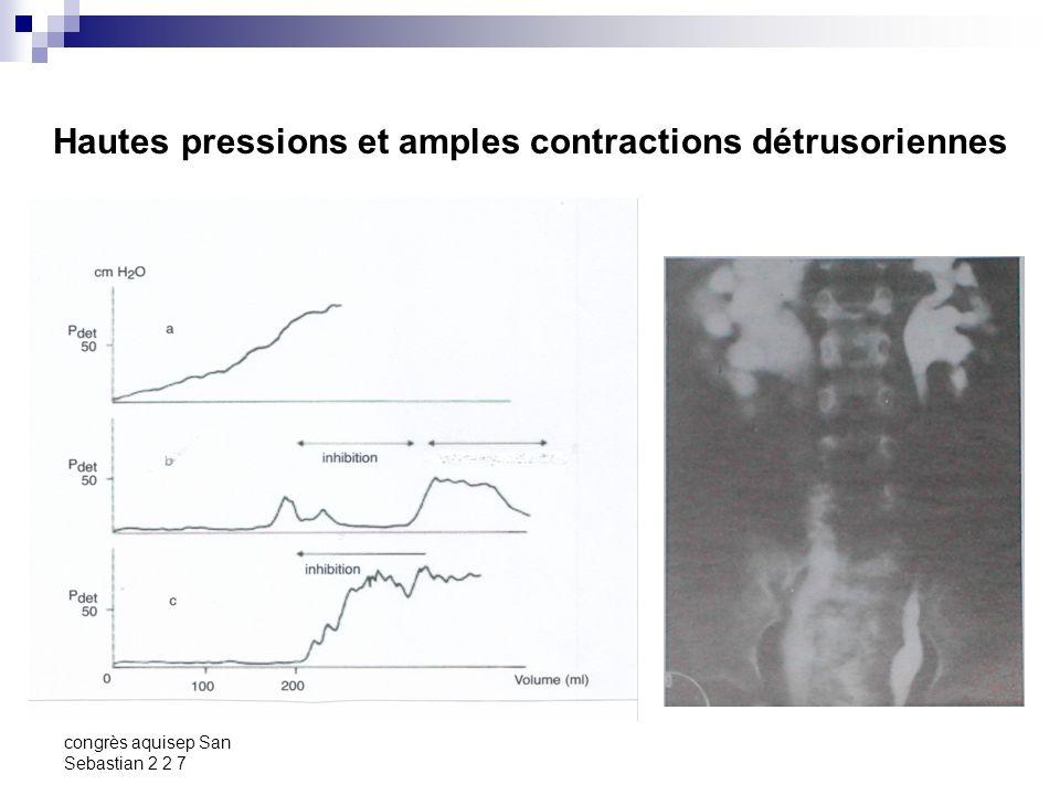 congrès aquisep San Sebastian 2 2 7 Dyssynergie vésico-sphinctérienne Définition: Contraction involontaire des muscles striés urétraux ou périurétraux associée à une contraction du détrusor [ICS, Abrams 2002].
