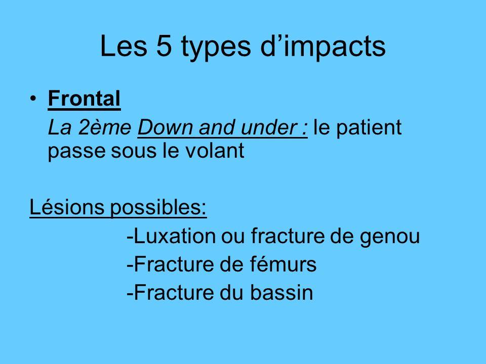 Frontal La 2ème Down and under : le patient passe sous le volant Lésions possibles: -Luxation ou fracture de genou -Fracture de fémurs -Fracture du ba