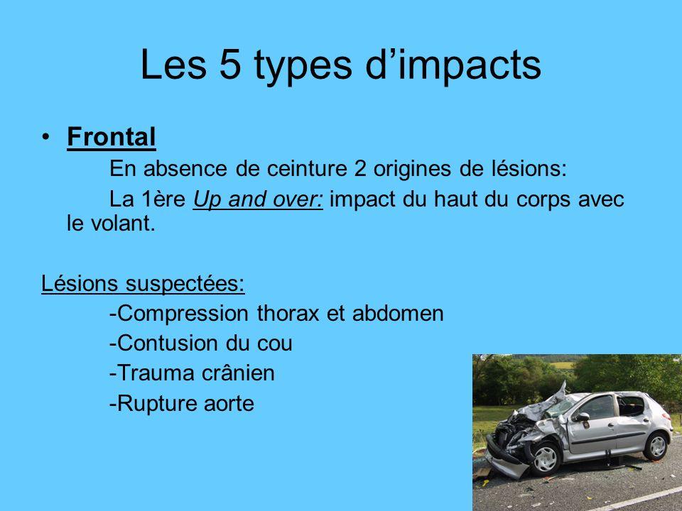 Les 5 types dimpacts Frontal En absence de ceinture 2 origines de lésions: La 1ère Up and over: impact du haut du corps avec le volant. Lésions suspec