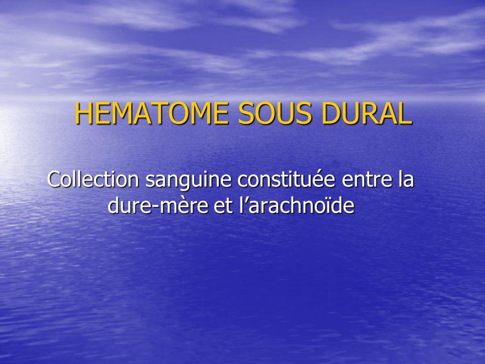 HEMATOME SOUS DURAL Collection sanguine constituée entre la dure-mère et larachnoïde