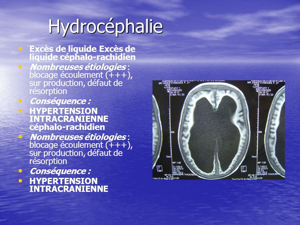 Hydrocéphalie Excès de liquide Excès de liquide céphalo-rachidien Nombreuses étiologies : blocage écoulement (+++), sur production, défaut de résorpti