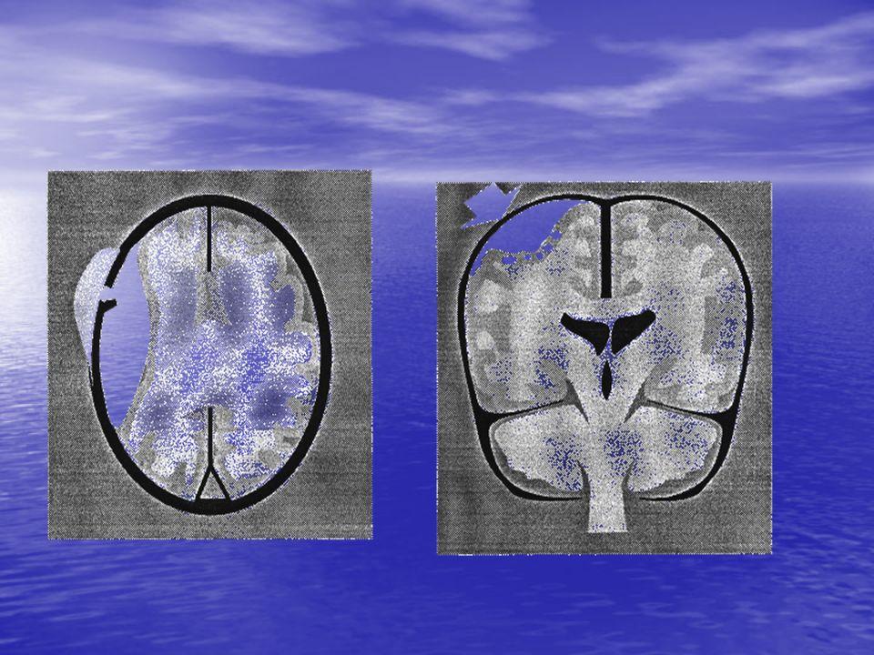 Principes : Principes : Ce nest pas un redon .Le but nest pas « dassécher » le cerveau .
