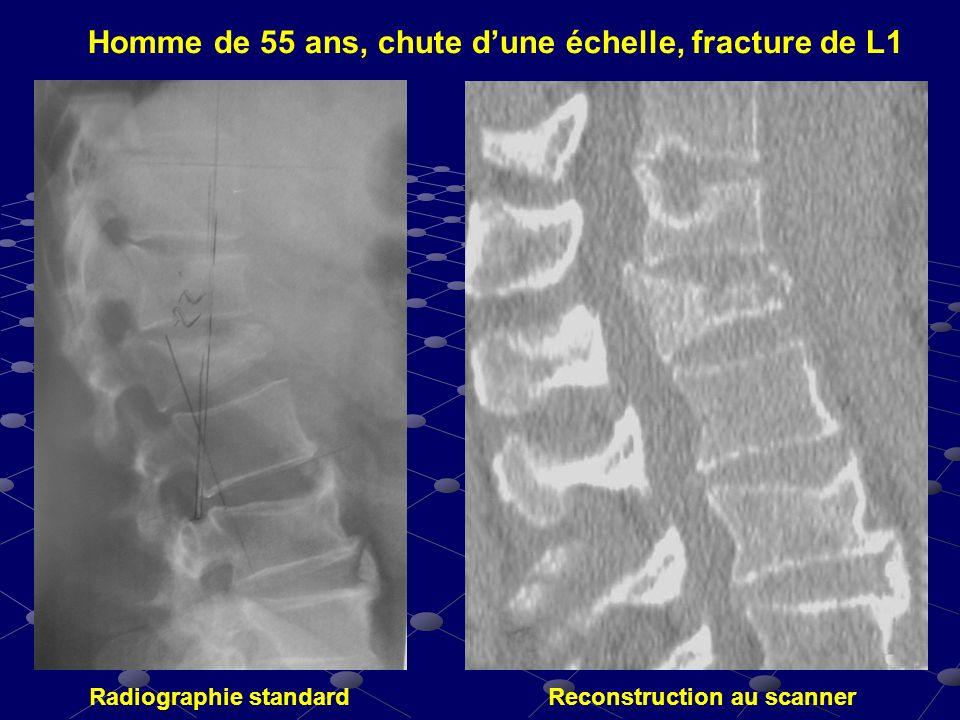Homme de 55 ans, chute dune échelle, fracture de L1 Radiographie standardReconstruction au scanner