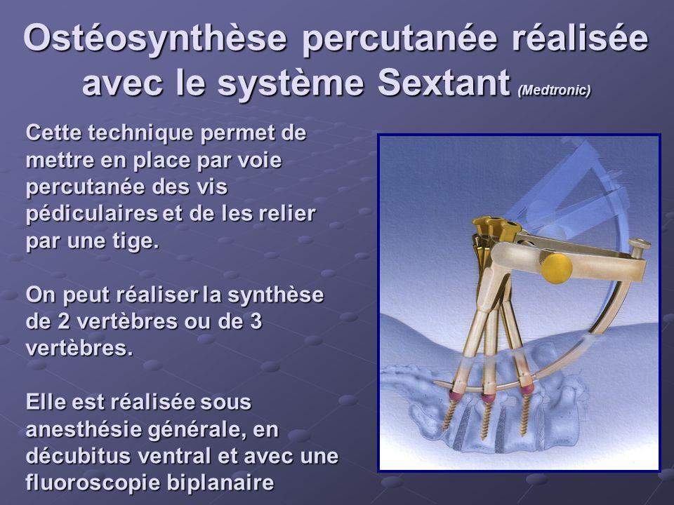 Ostéosynthèse percutanée réalisée avec le système Sextant (Medtronic) Cette technique permet de mettre en place par voie percutanée des vis pédiculair