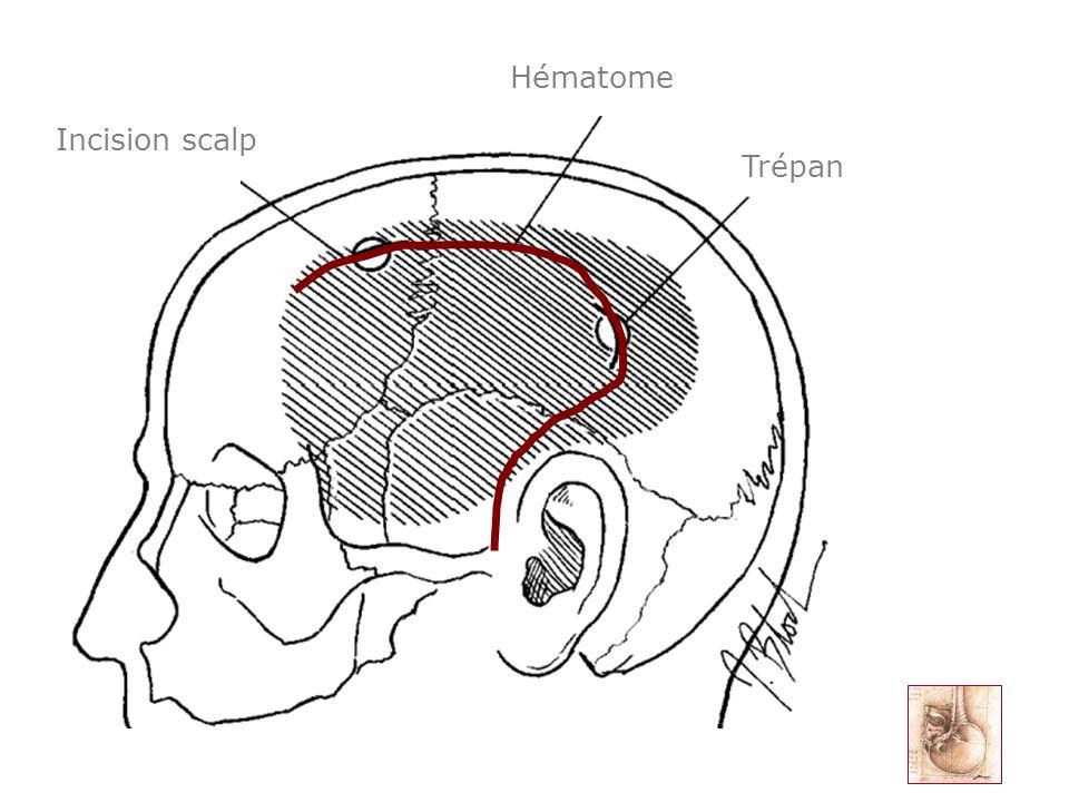 HématomeTrépan Incision scalp