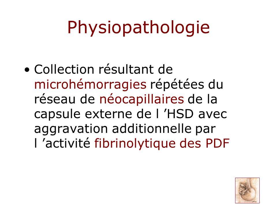 Physiopathologie Collection résultant de microhémorragies répétées du réseau de néocapillaires de la capsule externe de l HSD avec aggravation additio