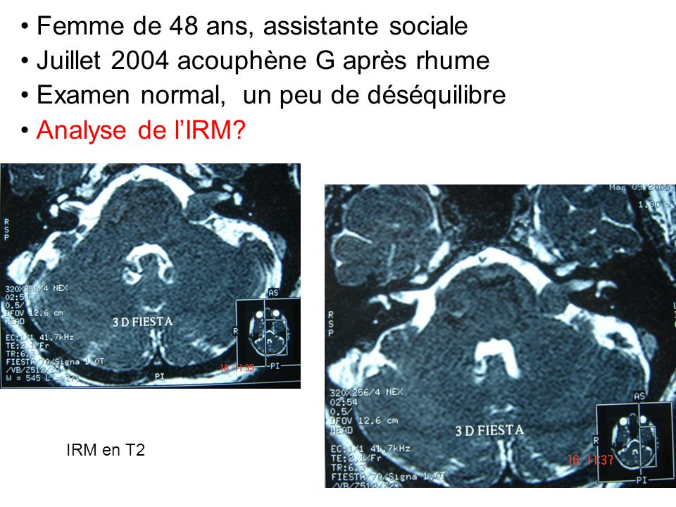 Femme de 48 ans, assistante sociale Juillet 2004 acouphène G après rhume Examen normal, un peu de déséquilibre Analyse de lIRM? IRM en T2