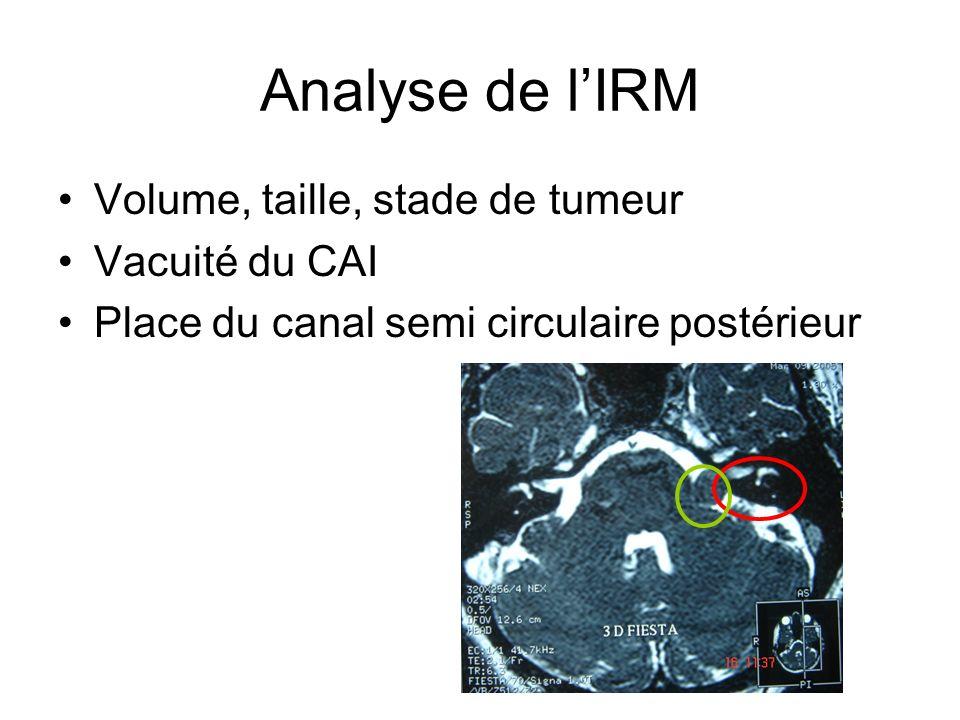 Analyse de lIRM Volume, taille, stade de tumeur Vacuité du CAI Place du canal semi circulaire postérieur