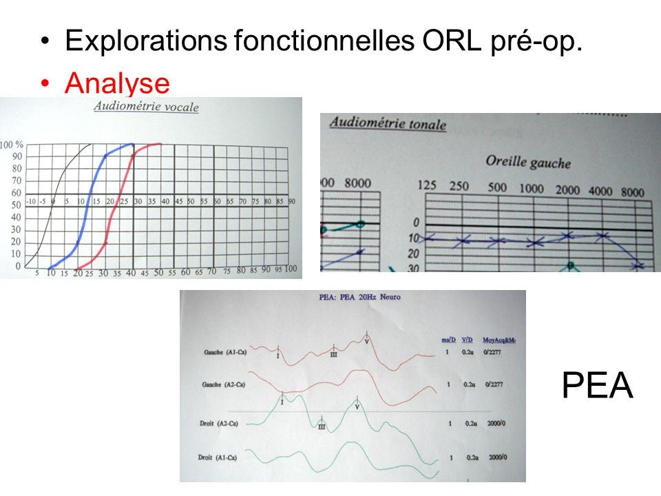 Explorations fonctionnelles ORL pré-op. Analyse PEA