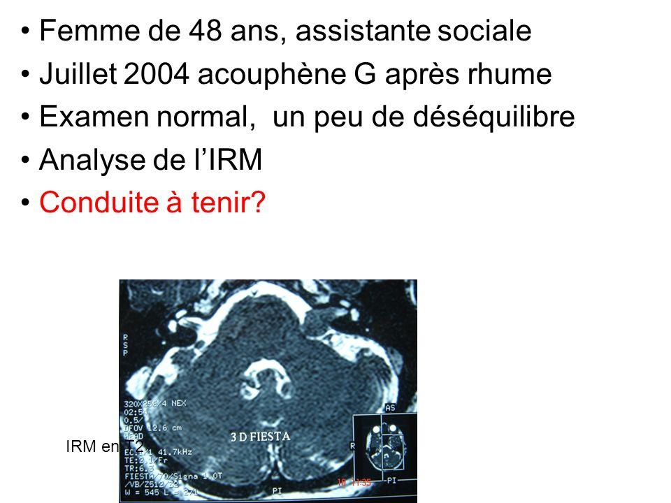 Femme de 48 ans, assistante sociale Juillet 2004 acouphène G après rhume Examen normal, un peu de déséquilibre Analyse de lIRM Conduite à tenir? IRM e
