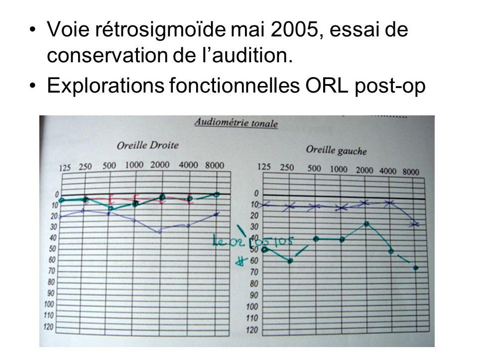 Voie rétrosigmoïde mai 2005, essai de conservation de laudition. Explorations fonctionnelles ORL post-op