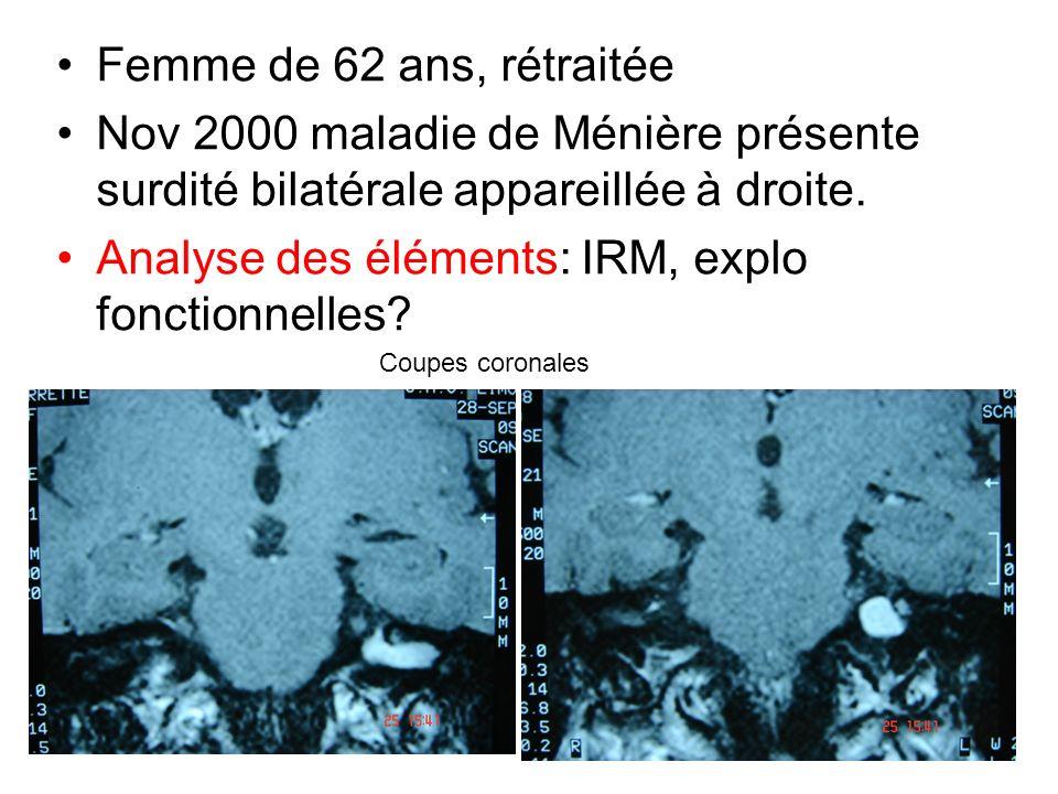 Femme de 62 ans, rétraitée Nov 2000 maladie de Ménière présente surdité bilatérale appareillée à droite. Analyse des éléments: IRM, explo fonctionnell