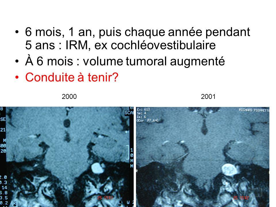 6 mois, 1 an, puis chaque année pendant 5 ans : IRM, ex cochléovestibulaire À 6 mois : volume tumoral augmenté Conduite à tenir? 20002001