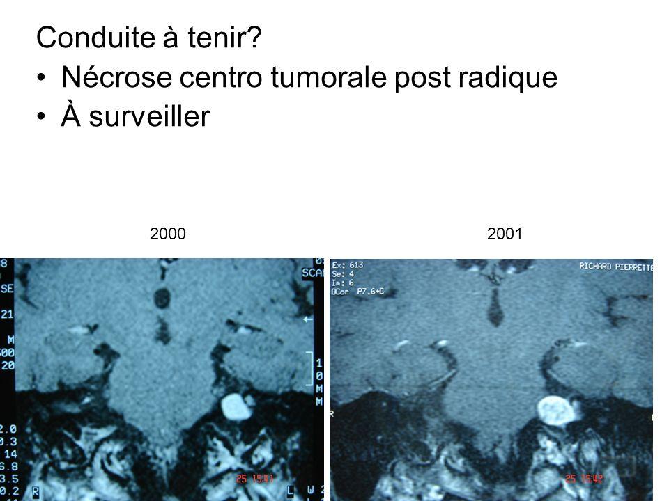Conduite à tenir? Nécrose centro tumorale post radique À surveiller 20002001