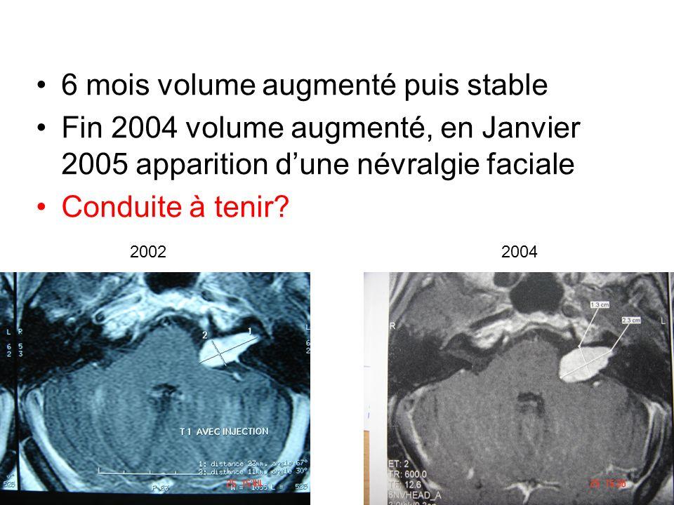 6 mois volume augmenté puis stable Fin 2004 volume augmenté, en Janvier 2005 apparition dune névralgie faciale Conduite à tenir? 20022004