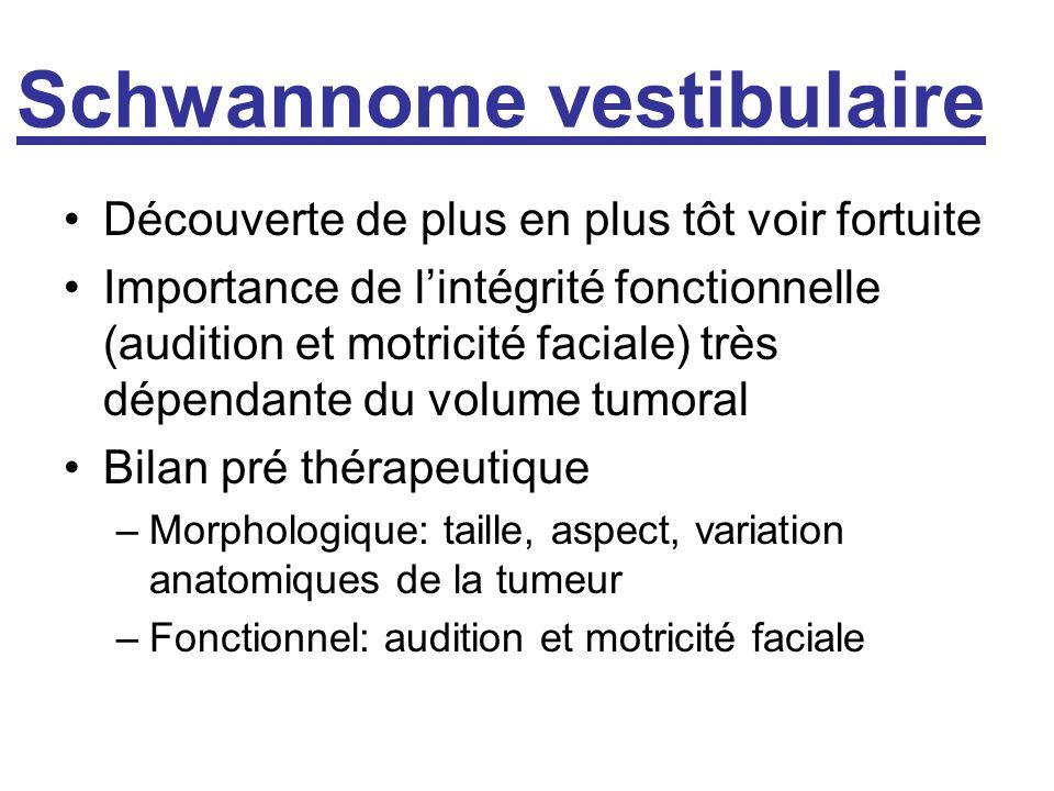 Schwannome vestibulaire Découverte de plus en plus tôt voir fortuite Importance de lintégrité fonctionnelle (audition et motricité faciale) très dépen