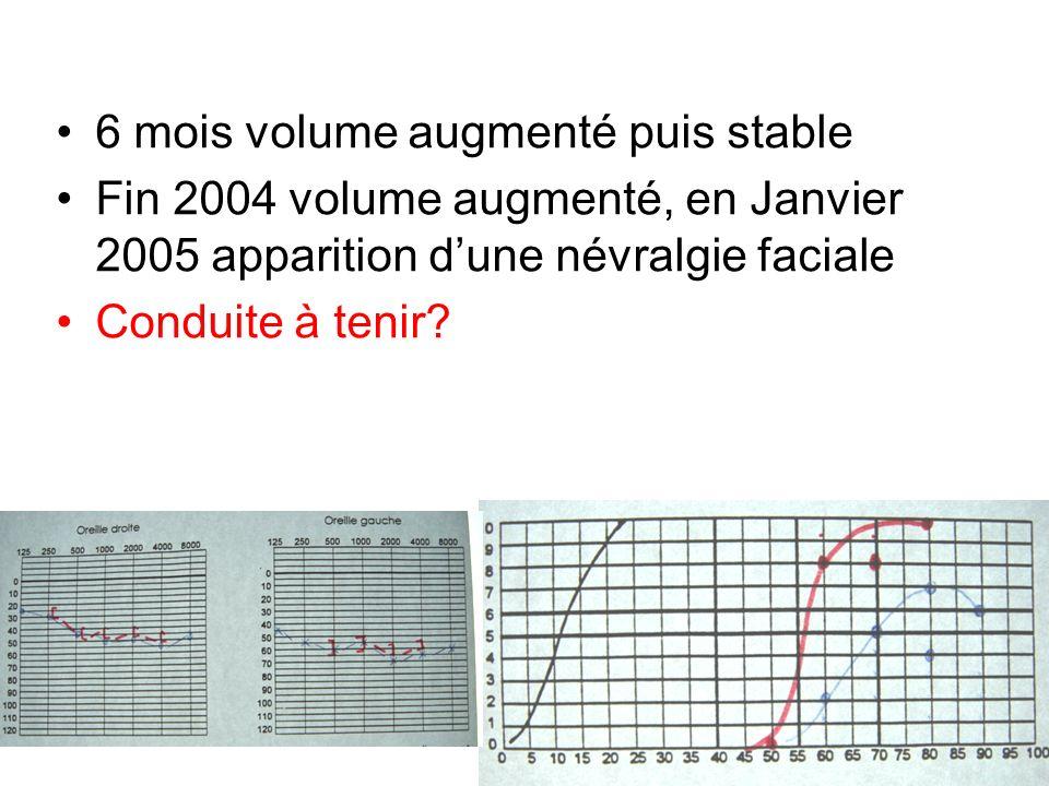 6 mois volume augmenté puis stable Fin 2004 volume augmenté, en Janvier 2005 apparition dune névralgie faciale Conduite à tenir?