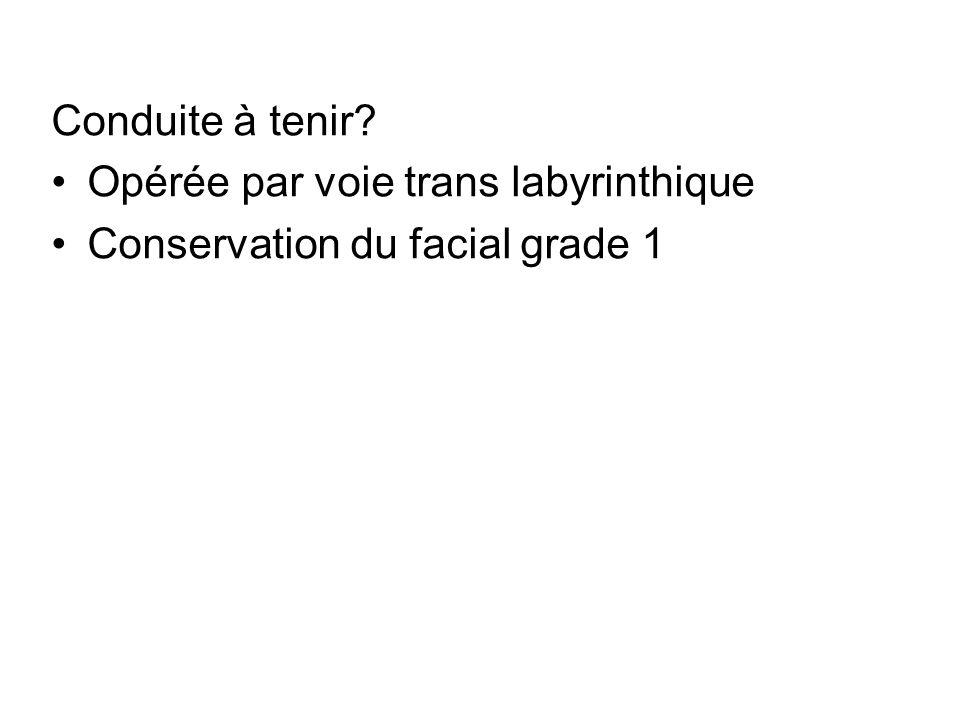 Opérée par voie trans labyrinthique Conservation du facial grade 1