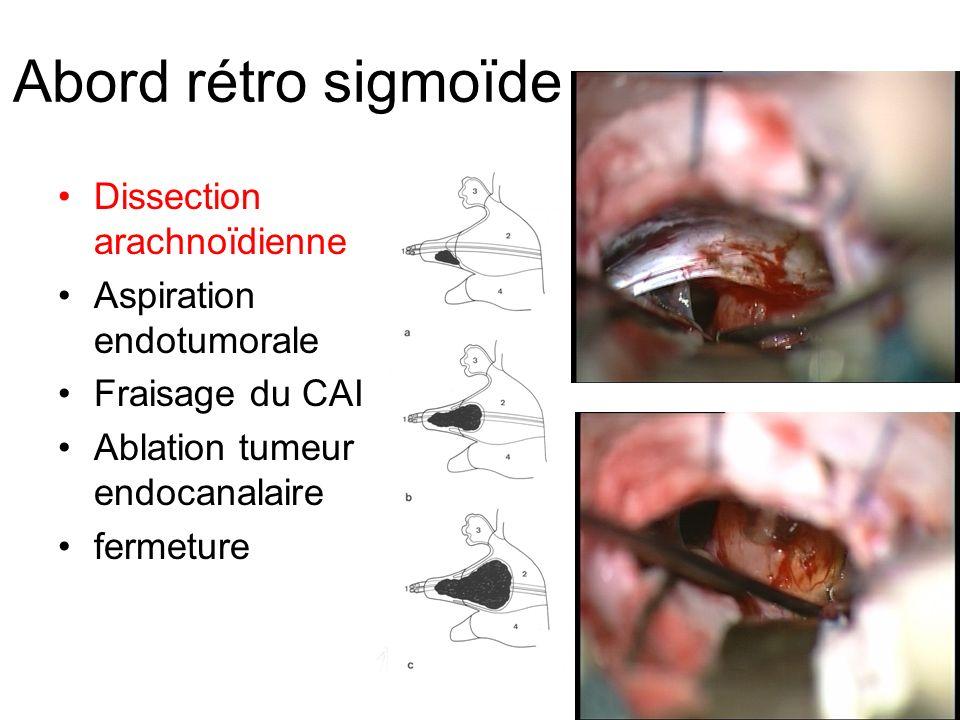 Abord rétro sigmoïde Dissection arachnoïdienne Aspiration endotumorale Fraisage du CAI Ablation tumeur endocanalaire fermeture