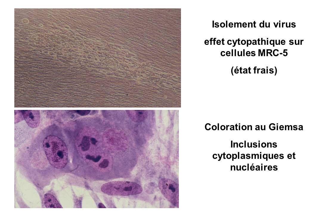 Isolement du virus effet cytopathique sur cellules MRC-5 (état frais) Coloration au Giemsa Inclusions cytoplasmiques et nucléaires
