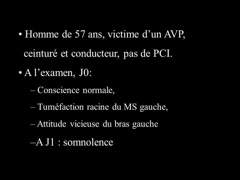Homme de 57 ans, victime dun AVP, ceinturé et conducteur, pas de PCI. A lexamen, J0: – Conscience normale, – Tuméfaction racine du MS gauche, – Attitu