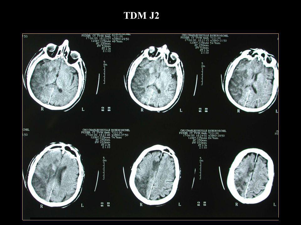 Döppler vaisseaux du cou et transcrânien