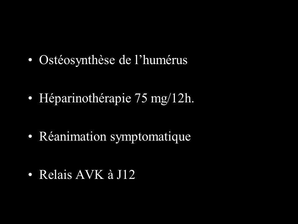 Ostéosynthèse de lhumérus Héparinothérapie 75 mg/12h. Réanimation symptomatique Relais AVK à J12