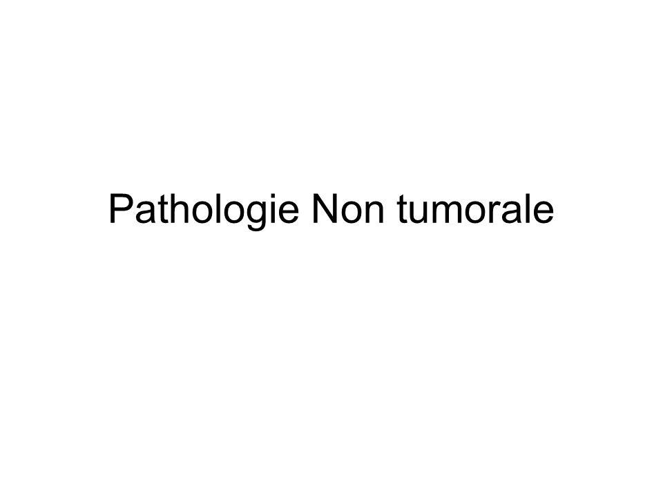 Pathologie Non tumorale