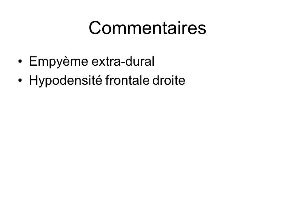 Empyème extra-dural Hypodensité frontale droite