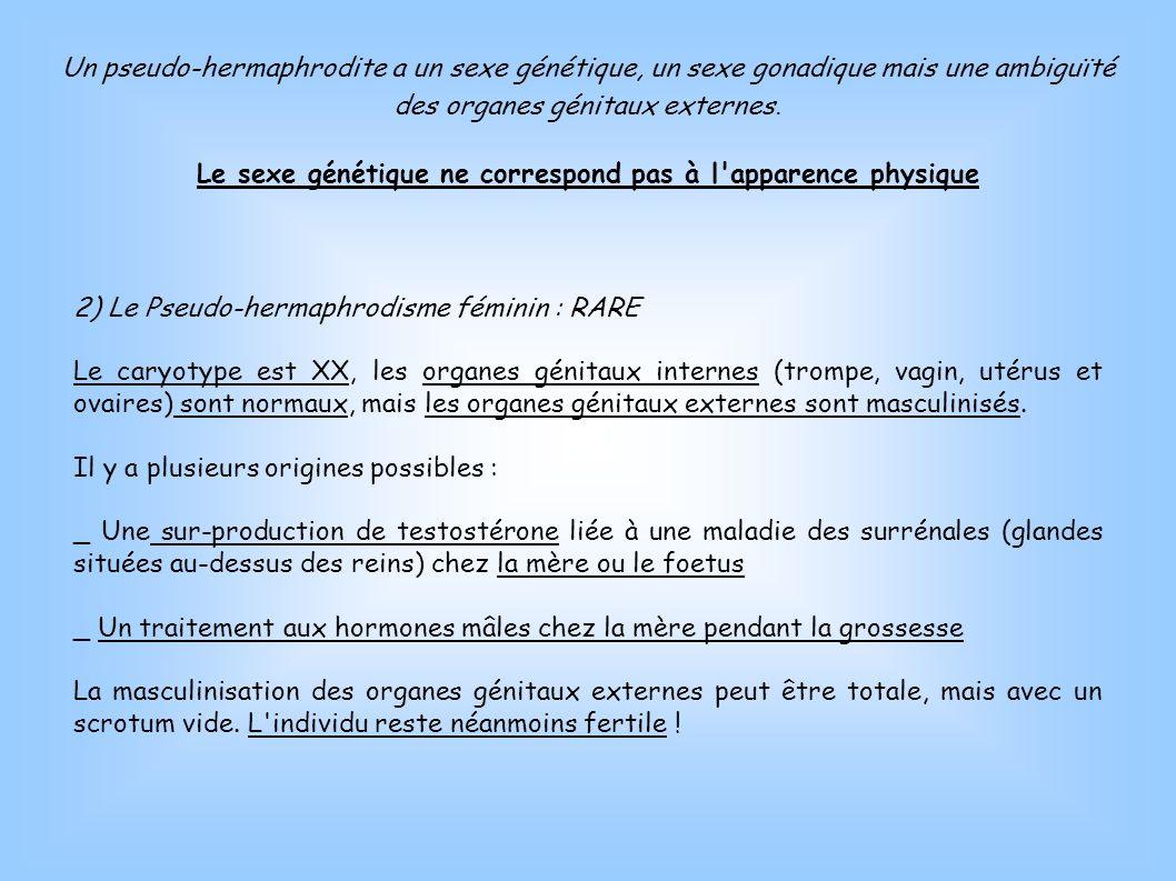2) Le Pseudo-hermaphrodisme féminin : RARE Le caryotype est XX, les organes génitaux internes (trompe, vagin, utérus et ovaires) sont normaux, mais le