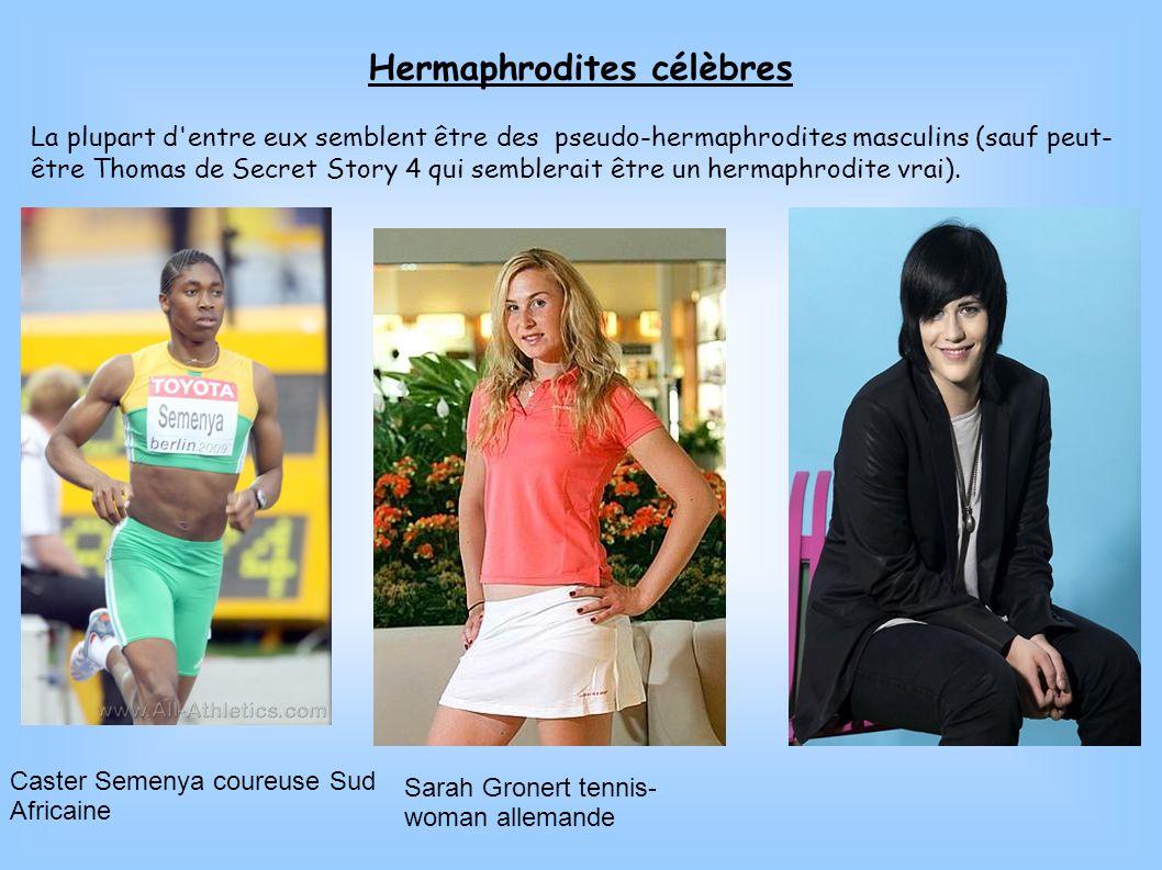Hermaphrodites célèbres La plupart d'entre eux semblent être des pseudo-hermaphrodites masculins (sauf peut- être Thomas de Secret Story 4 qui sembler