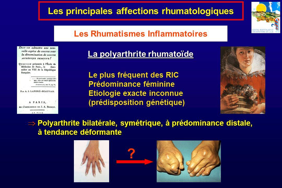 Le plus fréquent des RIC Prédominance féminine Etiologie exacte inconnue (prédisposition génétique) La polyarthrite rhumatoïde Les principales affecti