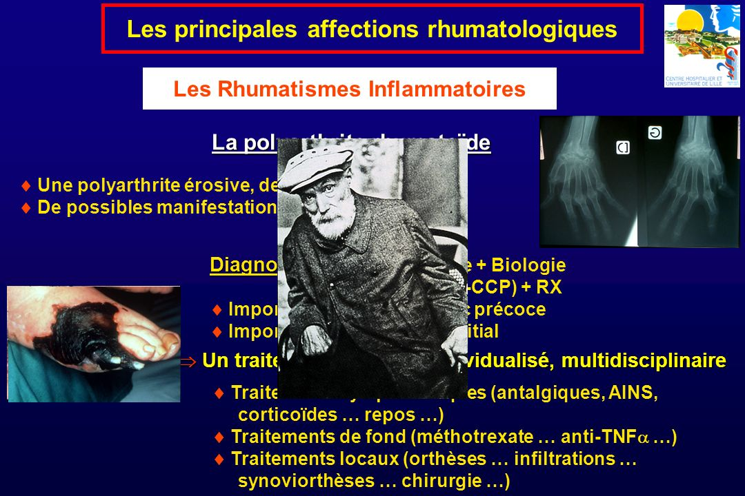 Une polyarthrite érosive, destructrice … De possibles manifestations extra-articulaires La polyarthrite rhumatoïde Les principales affections rhumatol