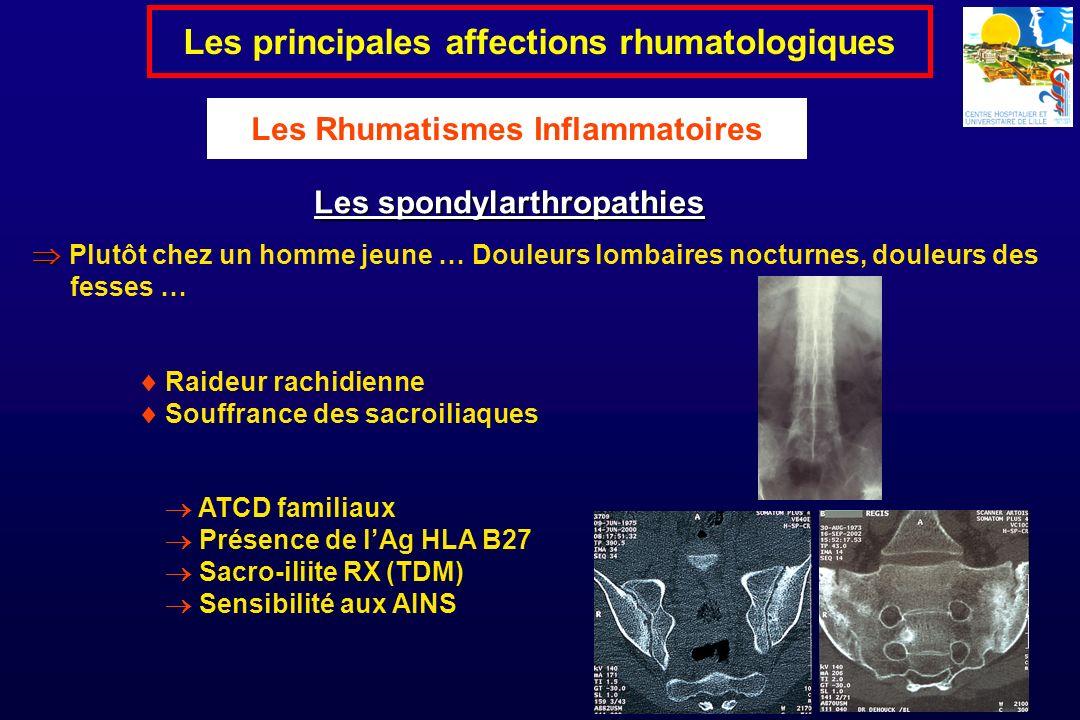 Raideur rachidienne Souffrance des sacroiliaques Les spondylarthropathies Les principales affections rhumatologiques Les Rhumatismes Inflammatoires Pl