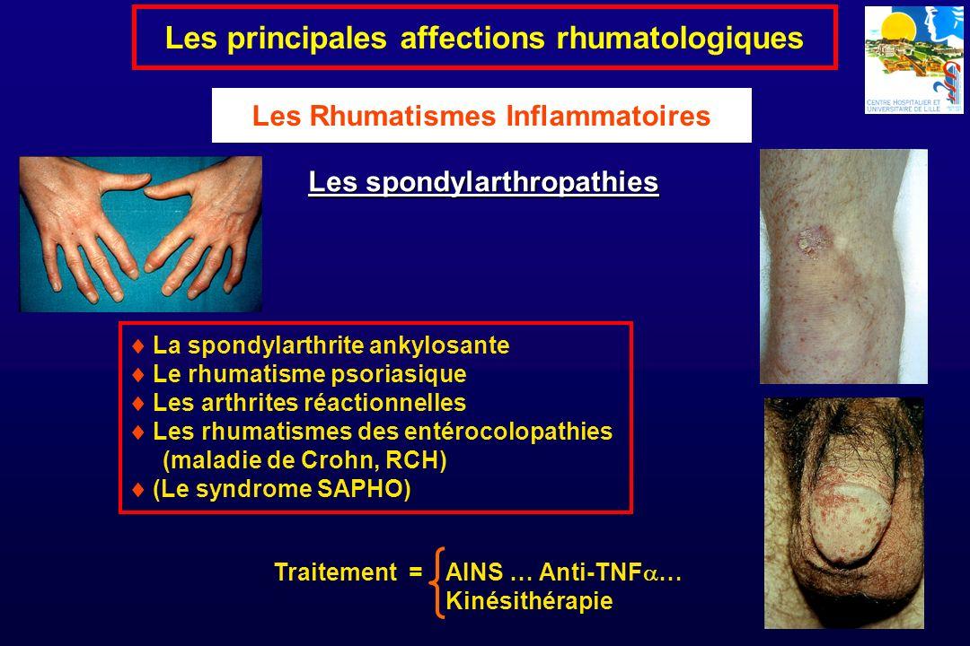 La spondylarthrite ankylosante Le rhumatisme psoriasique Les arthrites réactionnelles Les rhumatismes des entérocolopathies (maladie de Crohn, RCH) (L