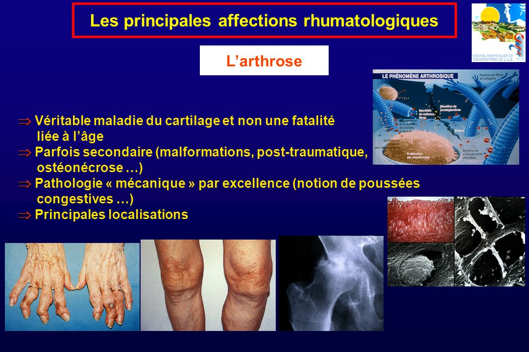 Véritable maladie du cartilage et non une fatalité liée à lâge Parfois secondaire (malformations, post-traumatique, ostéonécrose …) Pathologie « mécan