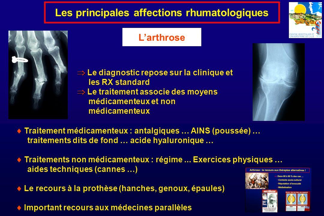 Le diagnostic repose sur la clinique et les RX standard Le traitement associe des moyens médicamenteux et non médicamenteux Les principales affections