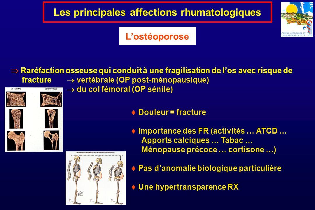 Raréfaction osseuse qui conduit à une fragilisation de los avec risque de fracture vertébrale (OP post-ménopausique) du col fémoral (OP sénile) Les pr
