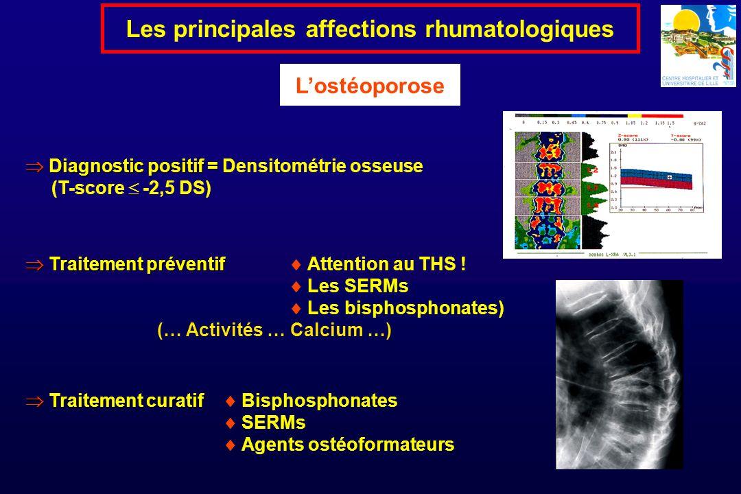 Diagnostic positif = Diagnostic positif = Densitométrie osseuse (T-score -2,5 DS) Les principales affections rhumatologiques Lostéoporose Traitement p