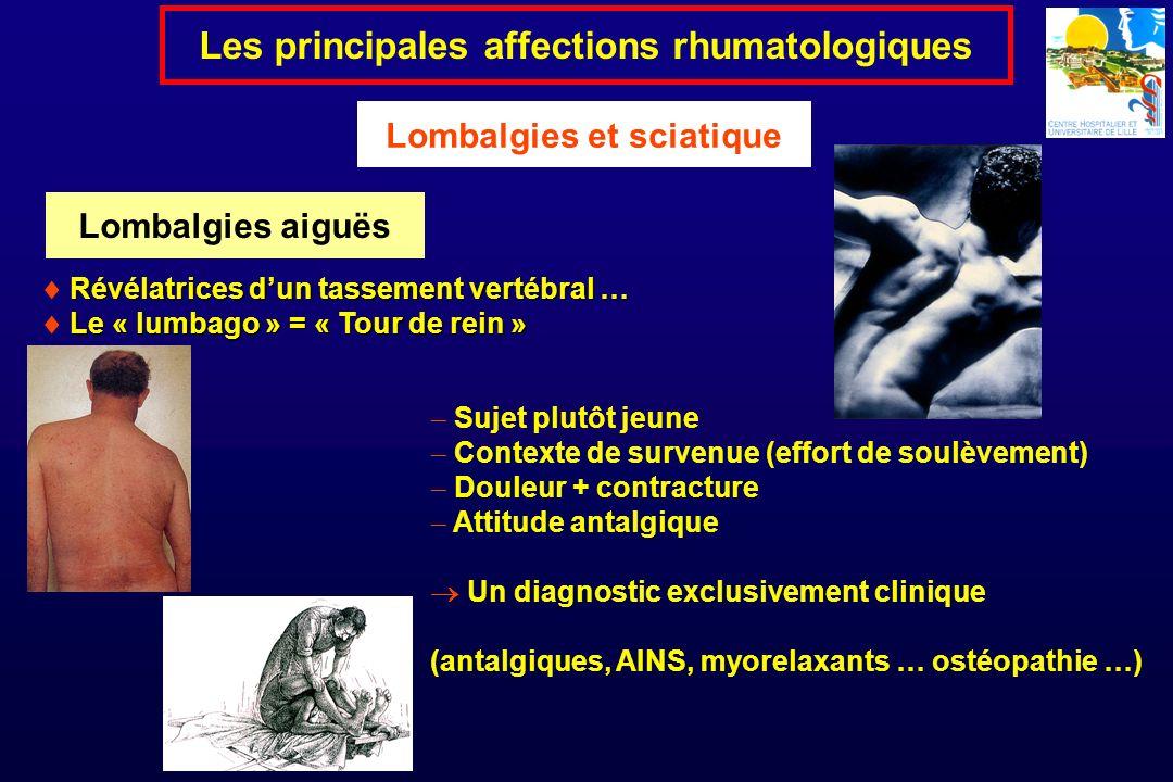 Révélatrices dun tassement vertébral … Le « lumbago » = « Tour de rein » Les principales affections rhumatologiques Lombalgies et sciatique Sujet plut